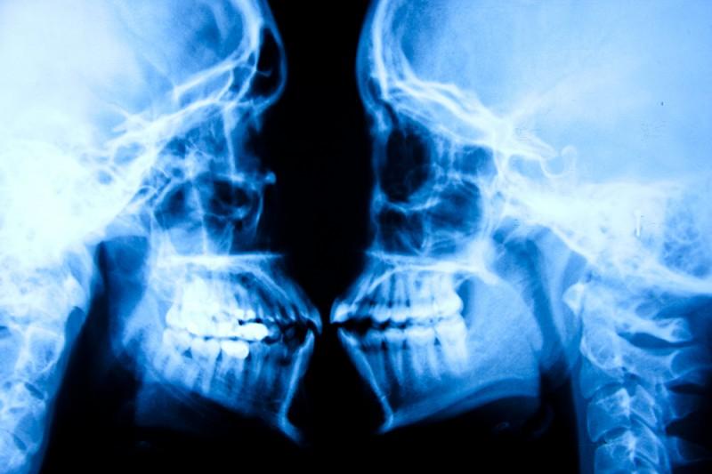 X-Ray Skulls by Tyler Shields