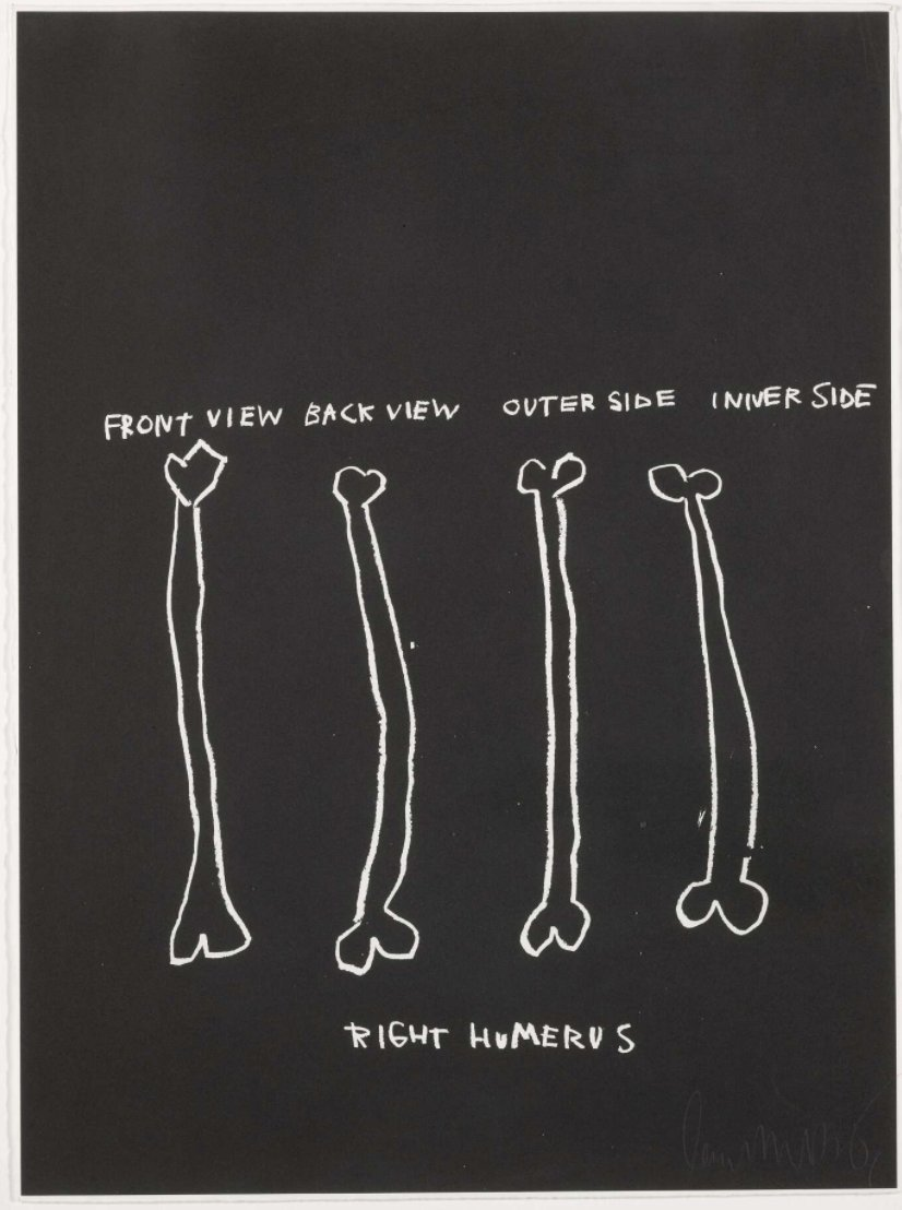 Right Humerus by Jean-Michel Basquiat